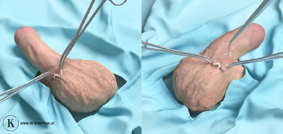Vasektomie Forum