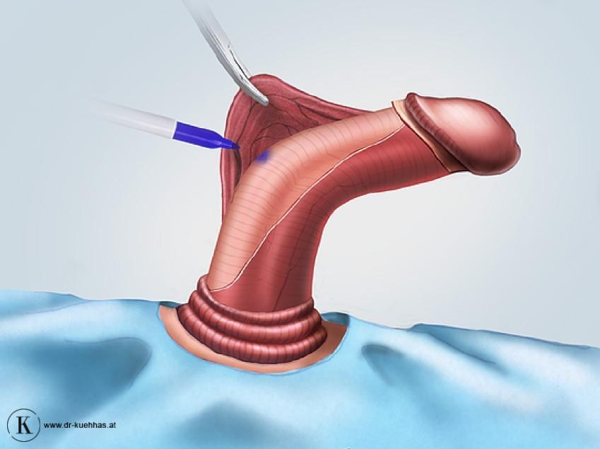 kongenitale penisdeviation