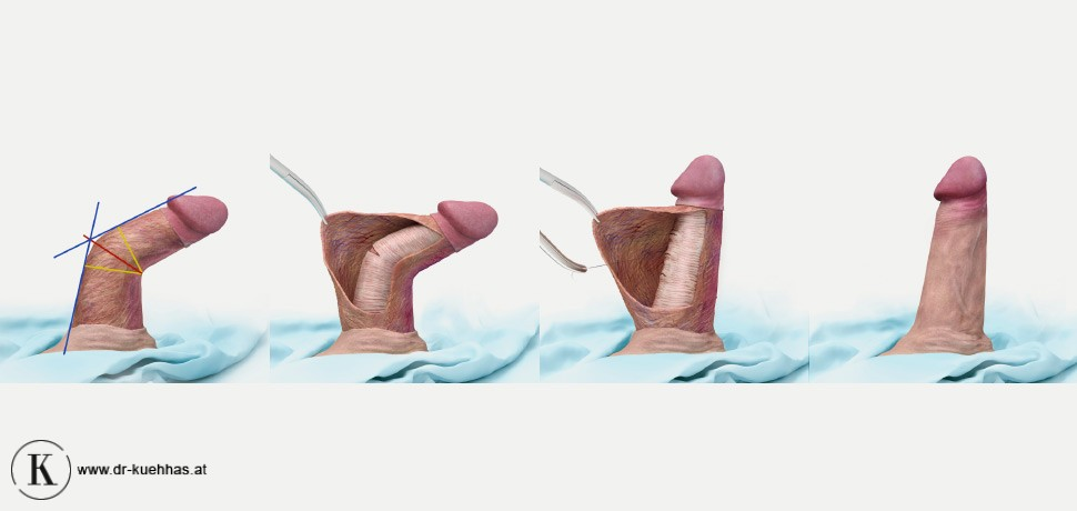 Penis cleaning tips