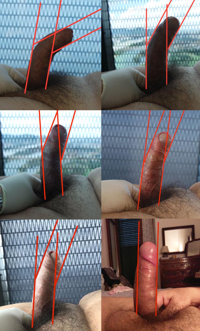 Controversies Around Penile Plethysmograph Testing